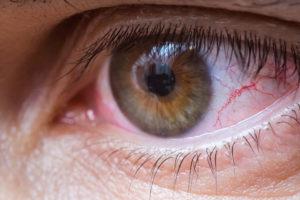 ojo rojo - dolor de cabeza y ojos
