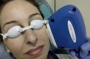 laser ojo seco
